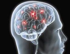 """Résultat de recherche d'images pour """"images stimulation transcrânienne à courant direct, ou tDCS"""""""